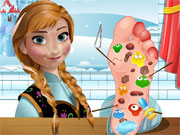 Play Anna Foot Doctor